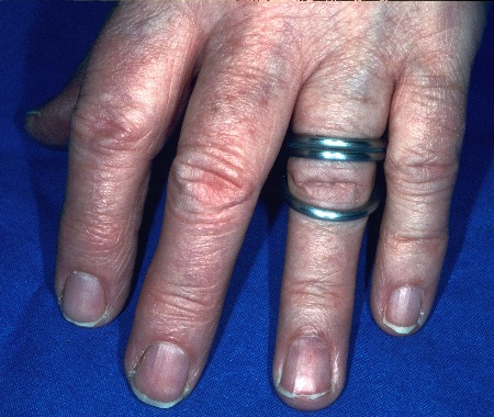fingerorthesen aus metall